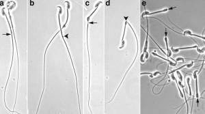 transmutation selenium sperm catastrophes health earth eu theory